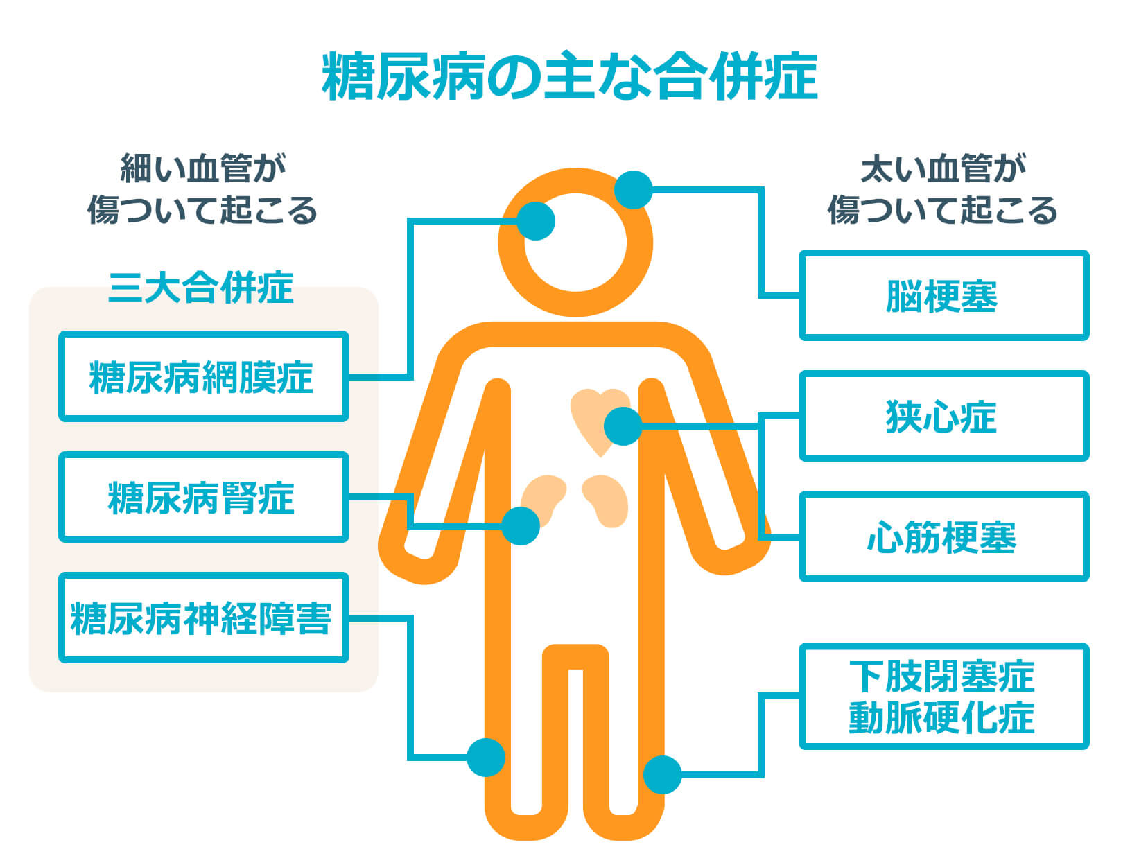 糖尿病の合併症
